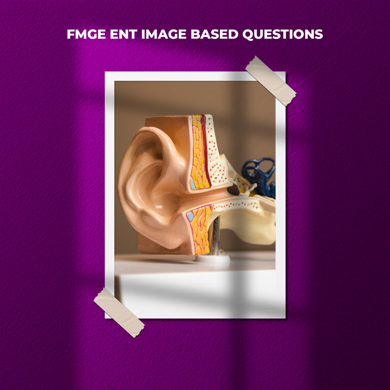 FMGE ENT Image Based Questions