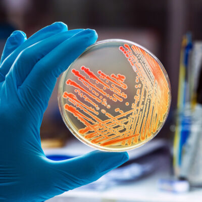 Microbiology FMGE Past Paper Questions